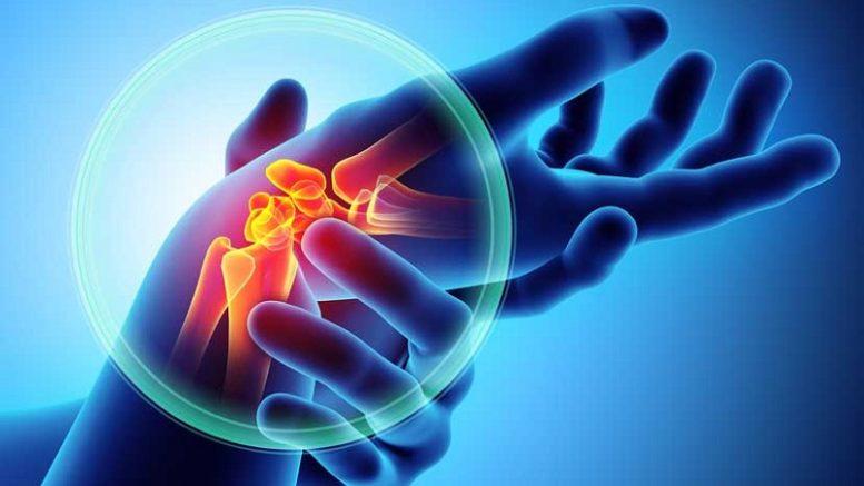 Arthritis or osteoarthritis